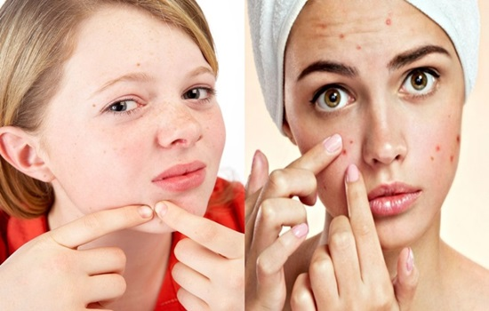 The Reason Why Some Women Are Just So Prone To Acne Breakouts