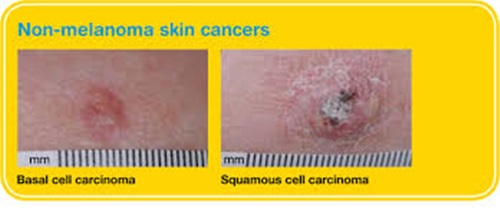 10 Intriguing Details about Cancer