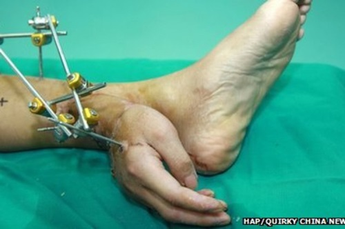 10 Of The Weirdest Medical Procedures Out There