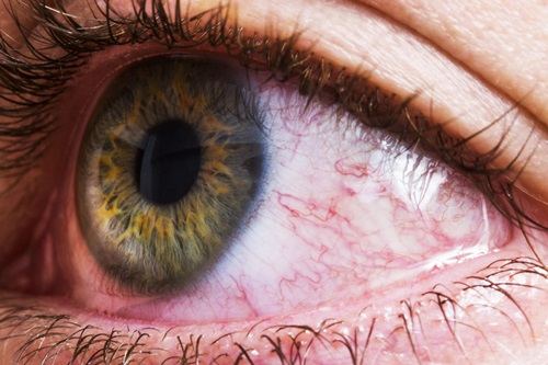 10 Strange Things That Can Happen To Your Eyes