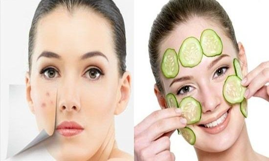 Home Remedies to Relieve Acne