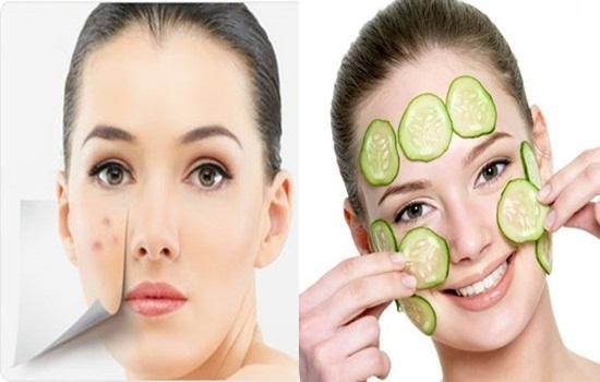 Photo of 8 Effective Home Remedies to Relieve Acne