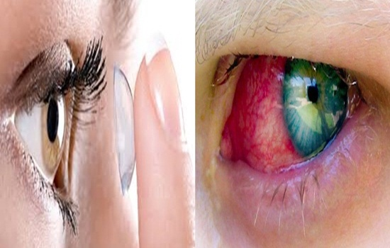 Photo of 10 Advices All Contact Lens Wearers Should Follow
