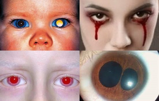 Photo of Top 10 Shocking Eye Disorders