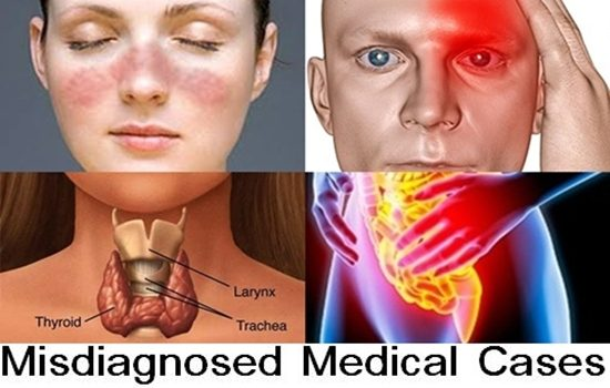 Photo of Top 10 Misdiagnosed Medical Cases