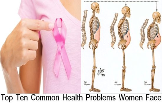 Photo of Top Ten Common Health Problems Women Face