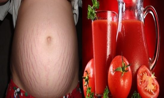 Top Ten Most Effective Ways To Get Rid Of Stretch Marks