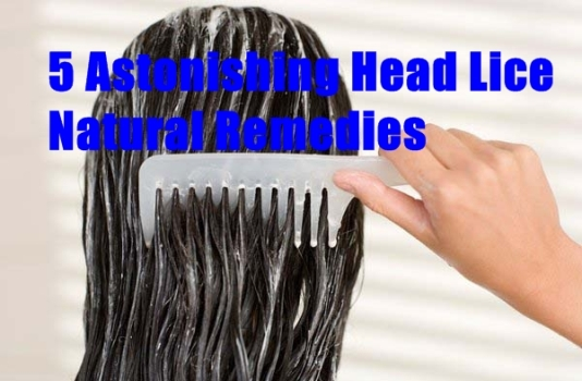 5 Astonishing Head Lice Natural Remedies