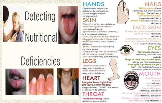 How to Spot Nutritional Deficiencies