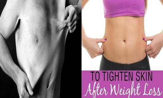 Tighten Flappy Skin After Losing Weight