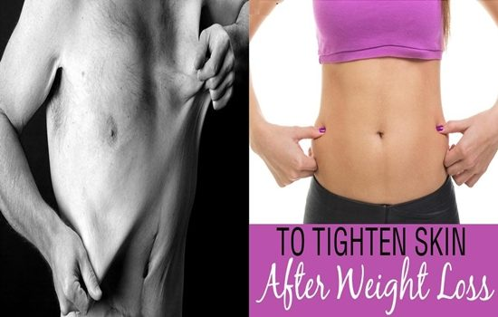 Photo of 7 Effective Ways To Tighten Flappy Skin After Losing Weight