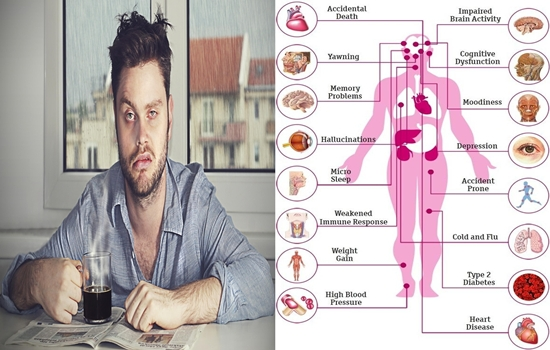 Photo of Seven Serious Health Conditions Sleep Deprivation Lead To
