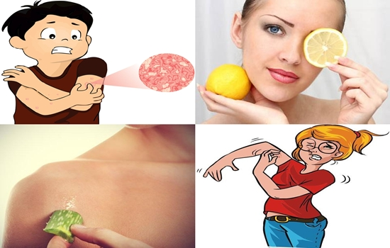 Photo of Eight Home Remedies For Itchy Skin