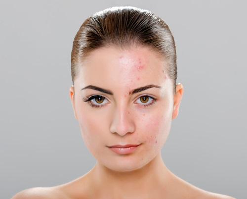 Simple tips to prevent your pimples from getting worse