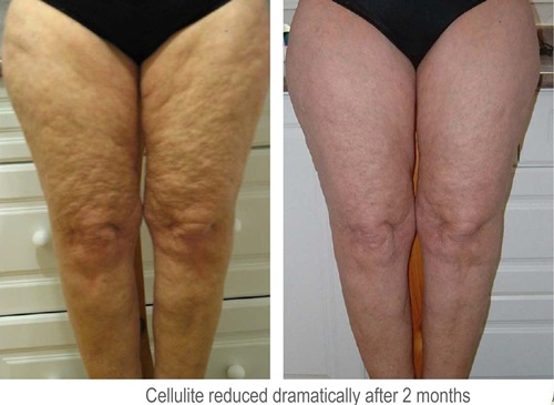 What are the real causes behind cellulite