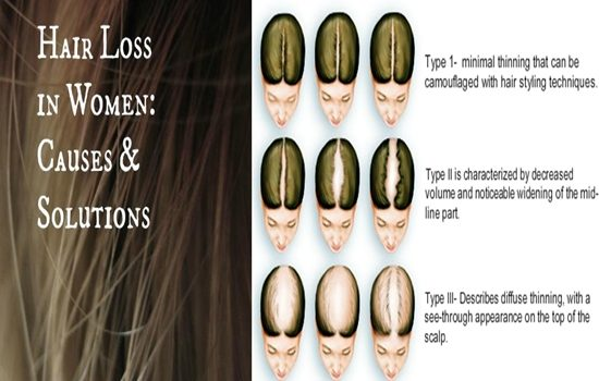 Photo of Causes And Solutions Of Hair Loss