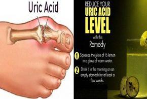 Effective Ways to Control Uric Acid Levels