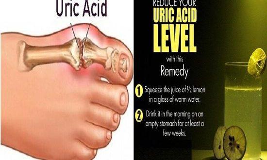 Ways to Control Uric Acid Levels