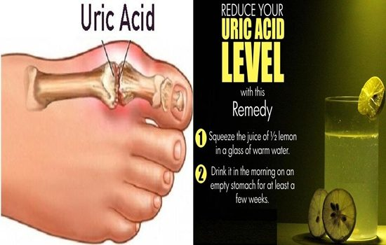 Ways to Control Uric Acid Levels