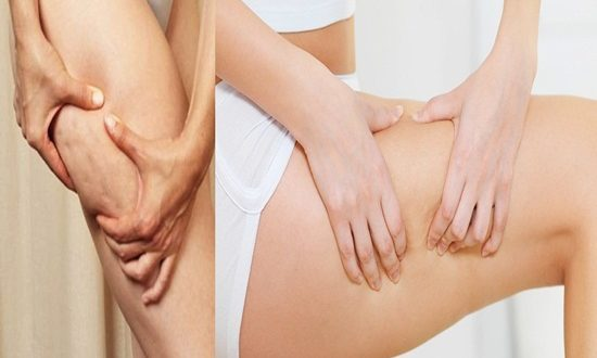 6 Wonderful Methods to Treat Cellulite