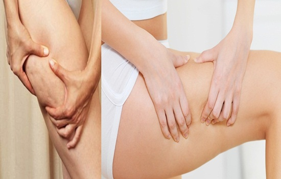 6 Wonderful Methods to Treat Cellulite