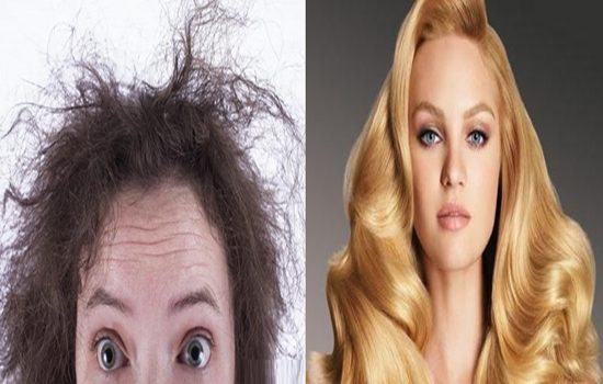 Causes of Damaged Hair