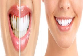 5 Natural Home Remedies to Heal Tooth Cavities