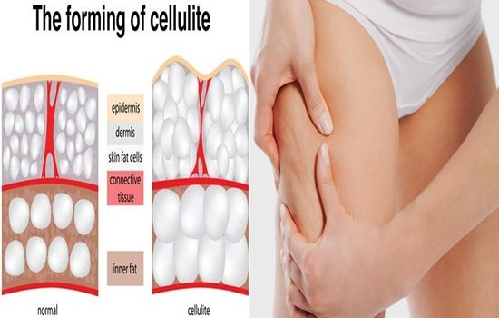 causes behind cellulite