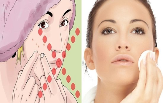 tips to prevent your pimples from getting worse