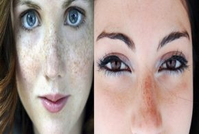 Seven Tips To Reduce Pigmentation Marks From The Skin