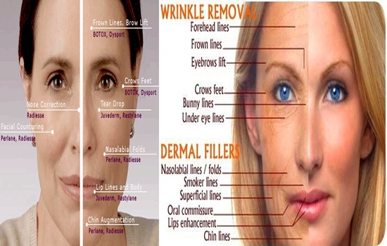 Photo of All You Need to Know About BOTOX and Fillers