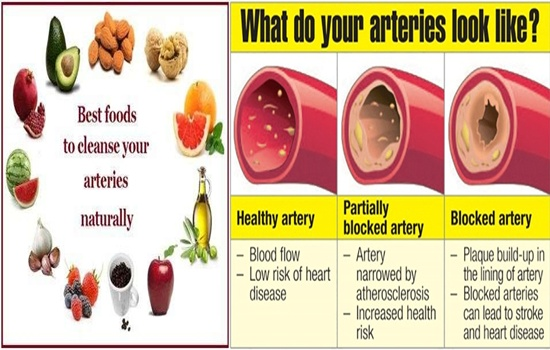 Photo of Three Super Foods For Cleansing The Arteries