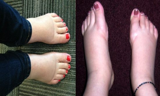 How to Cure Swollen Feet Naturally