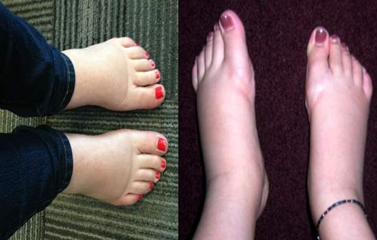 Photo of How to Cure Swollen Feet Naturally