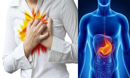 How to Relieve Acid Reflux at Home Effectively