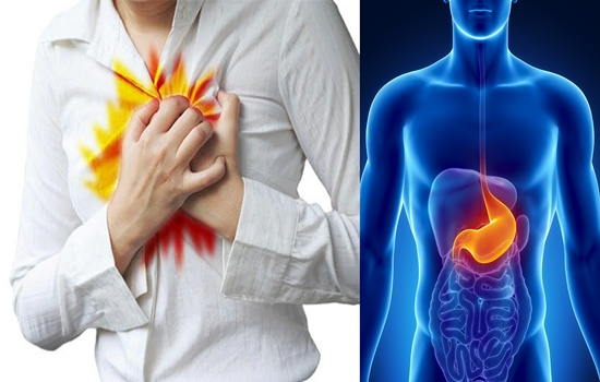 Photo of How to Relieve Acid Reflux at Home Effectively