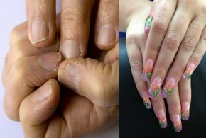 5 Wonderful Solutions for the Cracked Nails Catastrophe