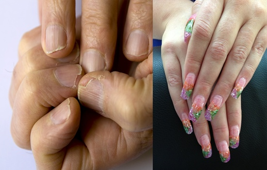 Solutions for the Cracked Nails Catastrophe