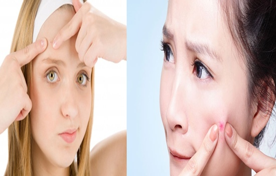 Tips To Treat Acnes Vulgaris Quickly