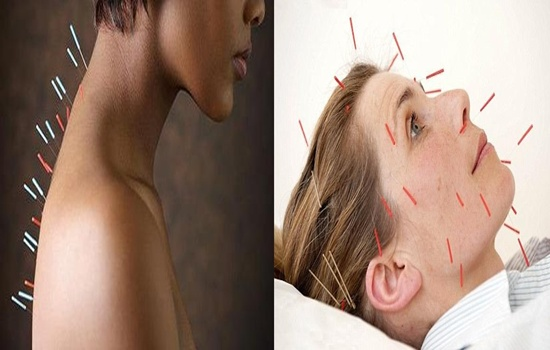Photo of 7 Unpleasant Side Effects of Acupuncture You Need to Know