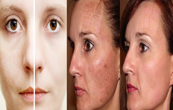 Photo of Five Ways To Minimize Your Enlarged Skin Pores