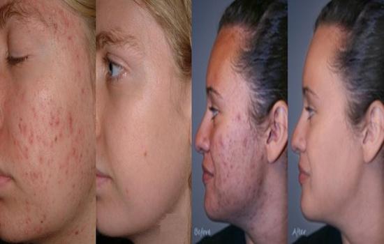 Photo of Adult Acne: Causes, Effects, and Treatment
