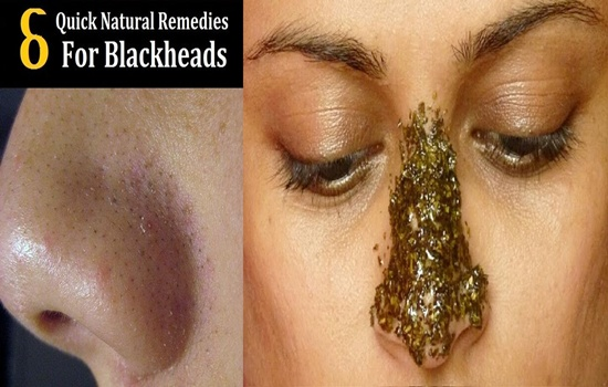 Photo of 6 Easy Natural Ways to Get Rid of Blackheads