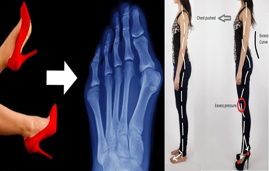 Photo of Three Things That Happen To Your Body When You Stop Wearing High Heels
