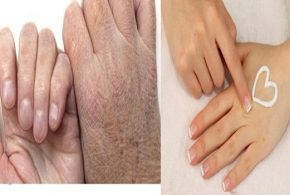 Three Home Remedies For Dry Hands