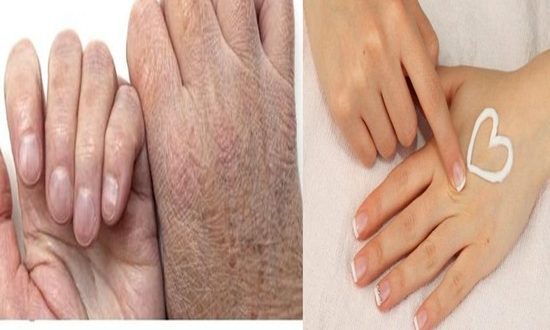Home Remedies For Dry Hands