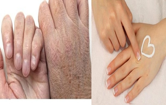 Photo of Three Home Remedies For Dry Hands