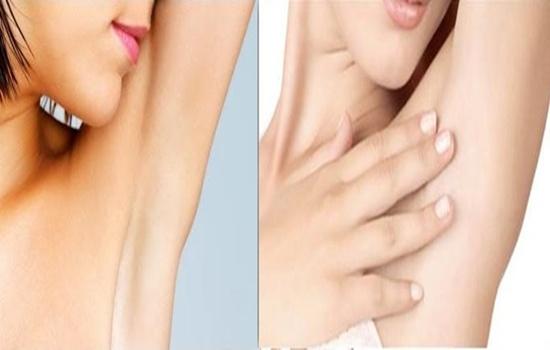 How To Lighten Dark Underarms Quickly