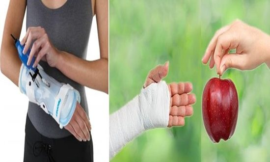 How to Speed Up Bone Healing