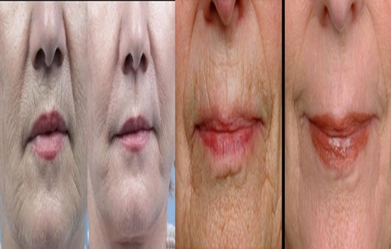 Useful Tips to Reduce Wrinkles around Your Mouth
